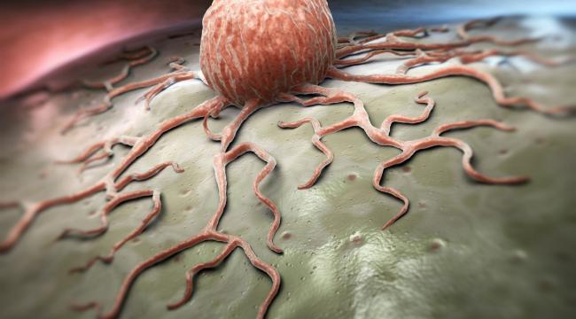 Kanser riskini düşüren 14 günlük yaşam önerisi!