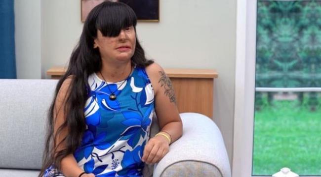 Yüzüne asit atan eski sevgilisinin evinde kalan Berfin Özek, o günleri anlattı: İntikam almak için gittim